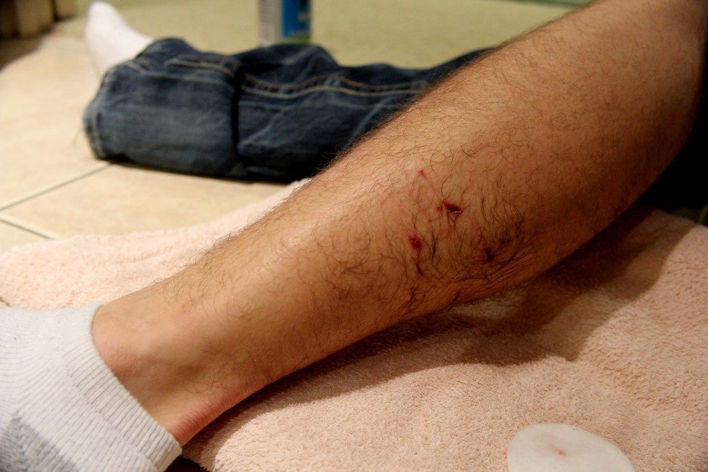 Man with wound on leg