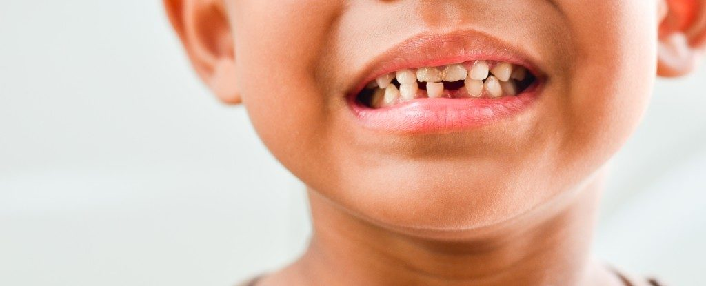 child's damaged teeth